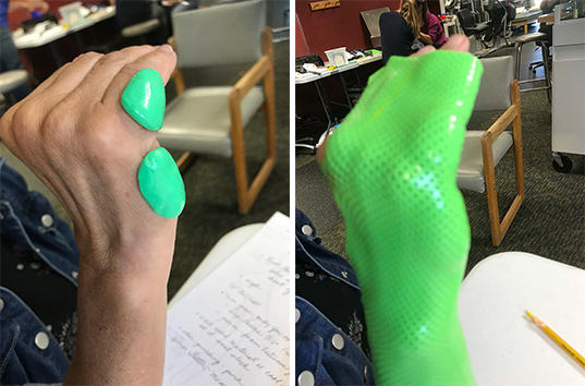 Theraputty to prevent pressure points for a more comfortable orthosis.