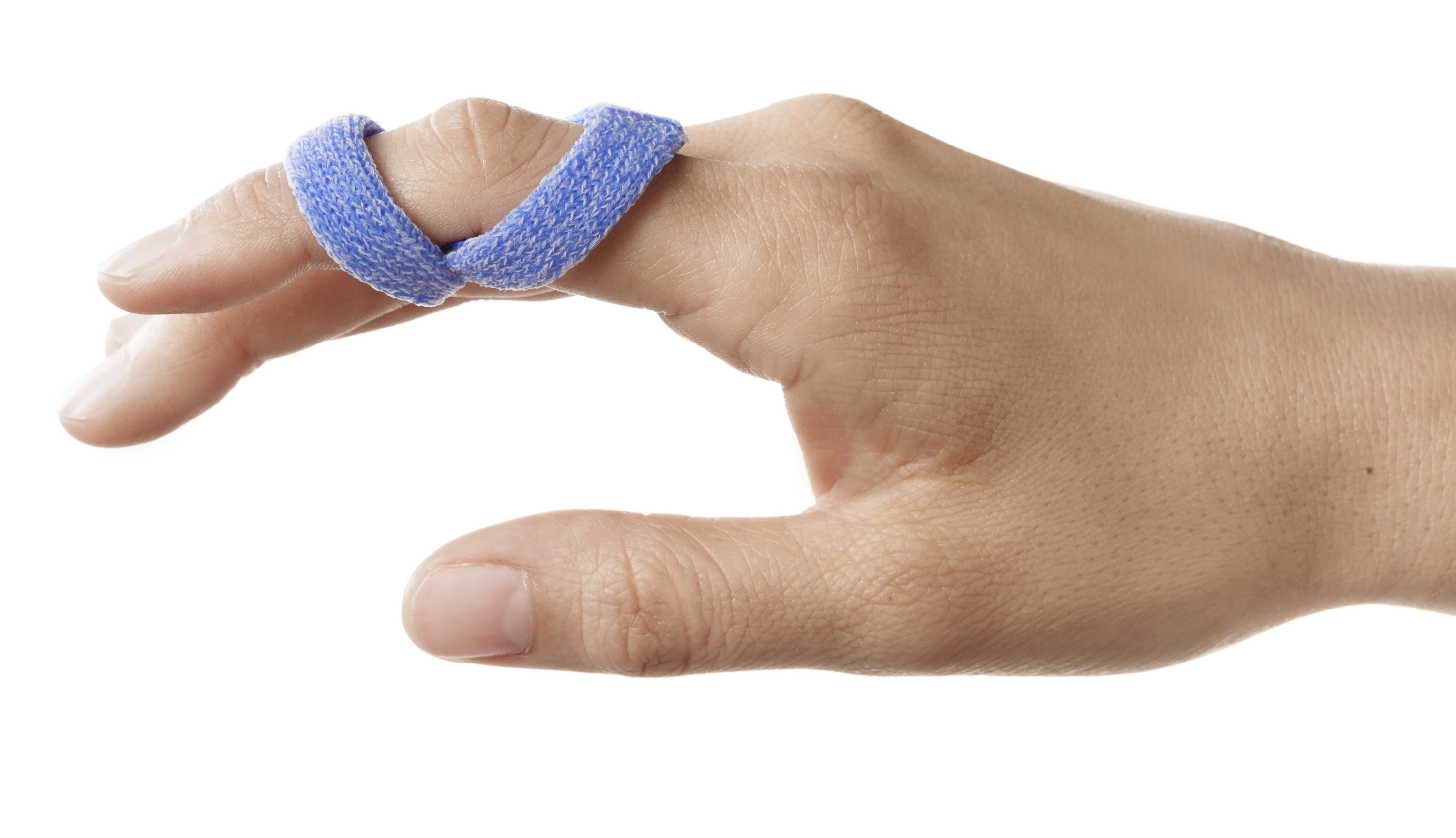 Joint hypermobility managed with Orthoses