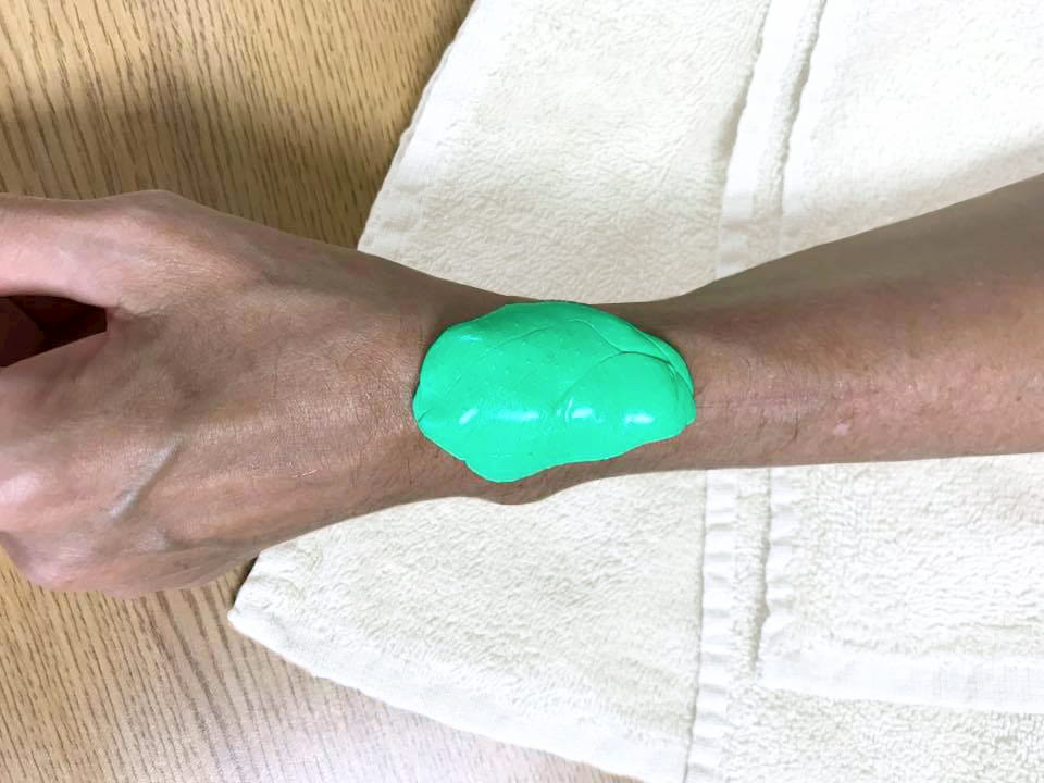 The fifth splinting principle is to avoid pressure points in the orthosis.