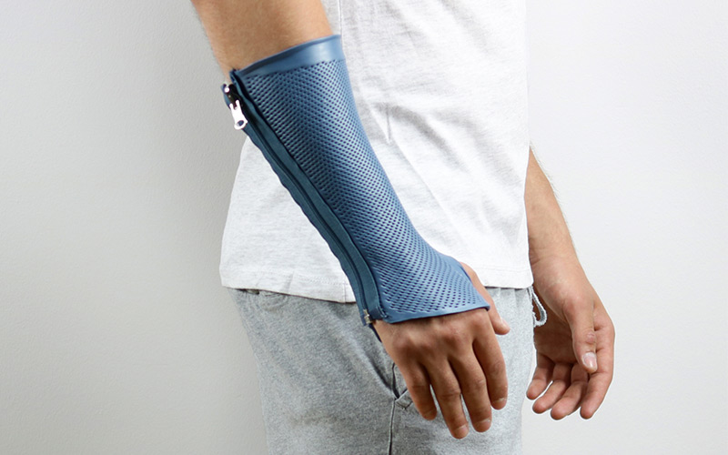Circumferential wrist splint for sports injuries to the wrist.