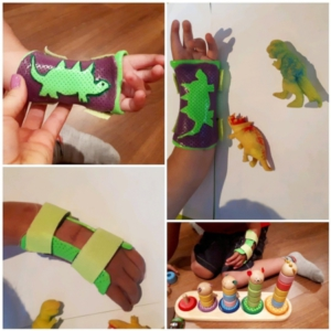 Playful orthotic fabrication for congenital malformation.