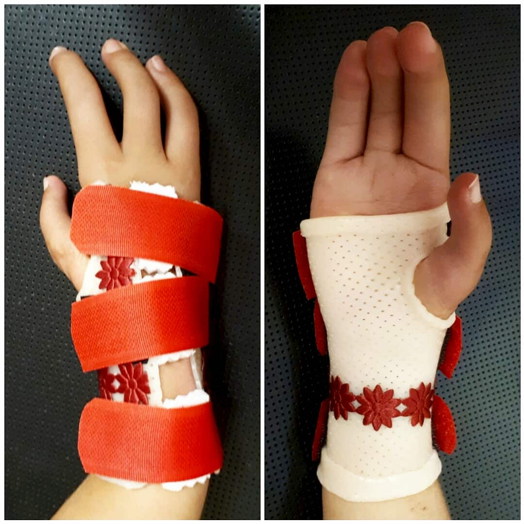 Orthosis for clubhand.