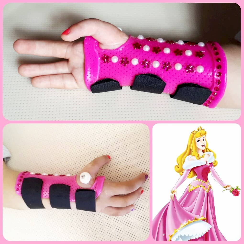 Orthotic fabrication for congenital malformation of clubhand