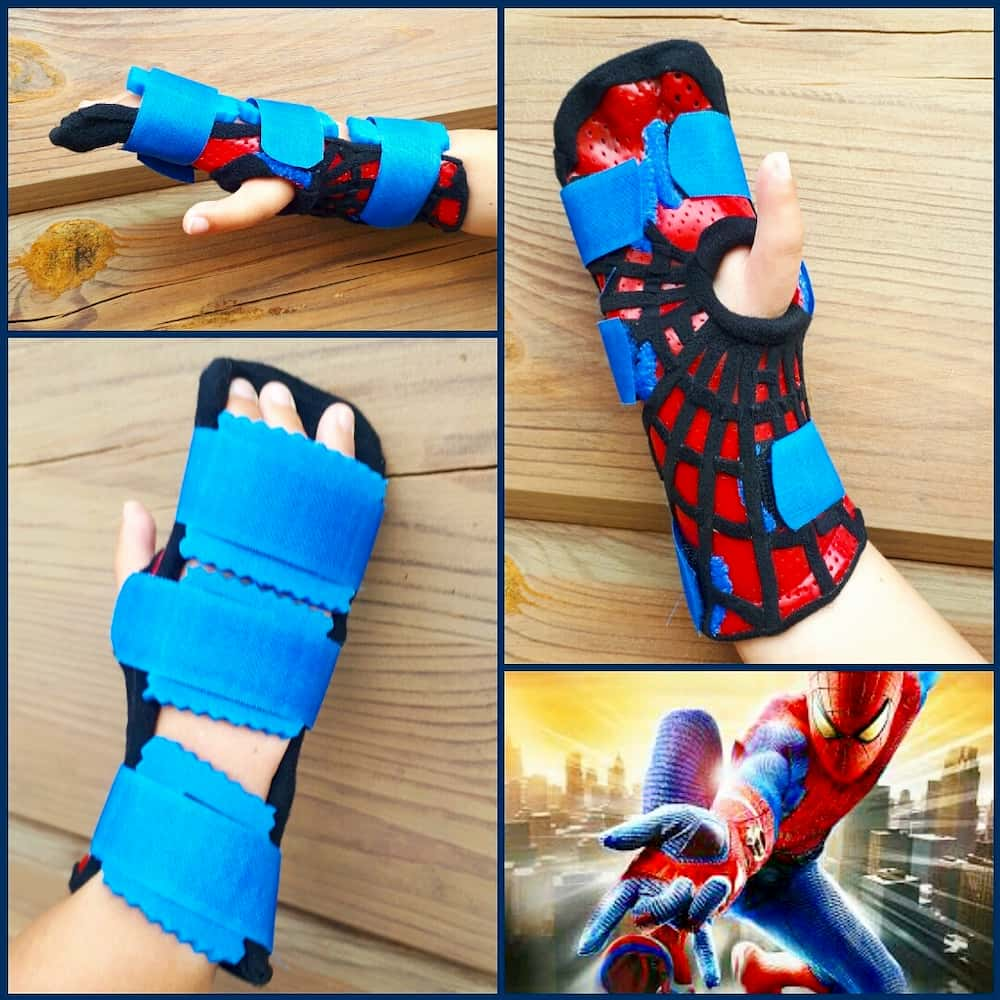 Orthosis for clubhand congenital malformation.