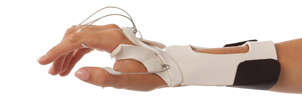 Distal radial nerve orthosis with springs on all fingers
