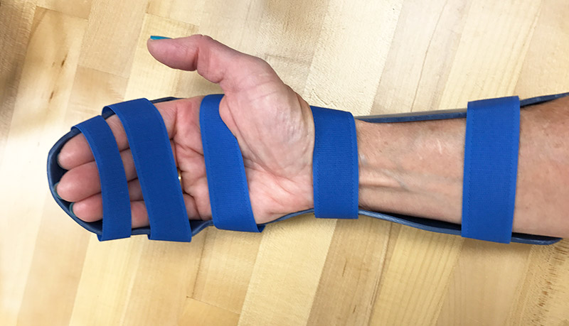 Dorsal blocking orthosis from Orfit thermoplastic.