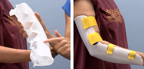 Static progressive elbow flexion orthosis in thermoplastic with yellow strapping