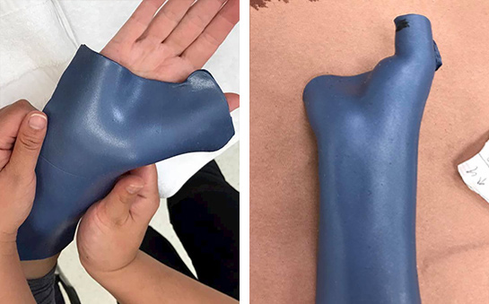 Moulding the orthosis on the patient's hand.
