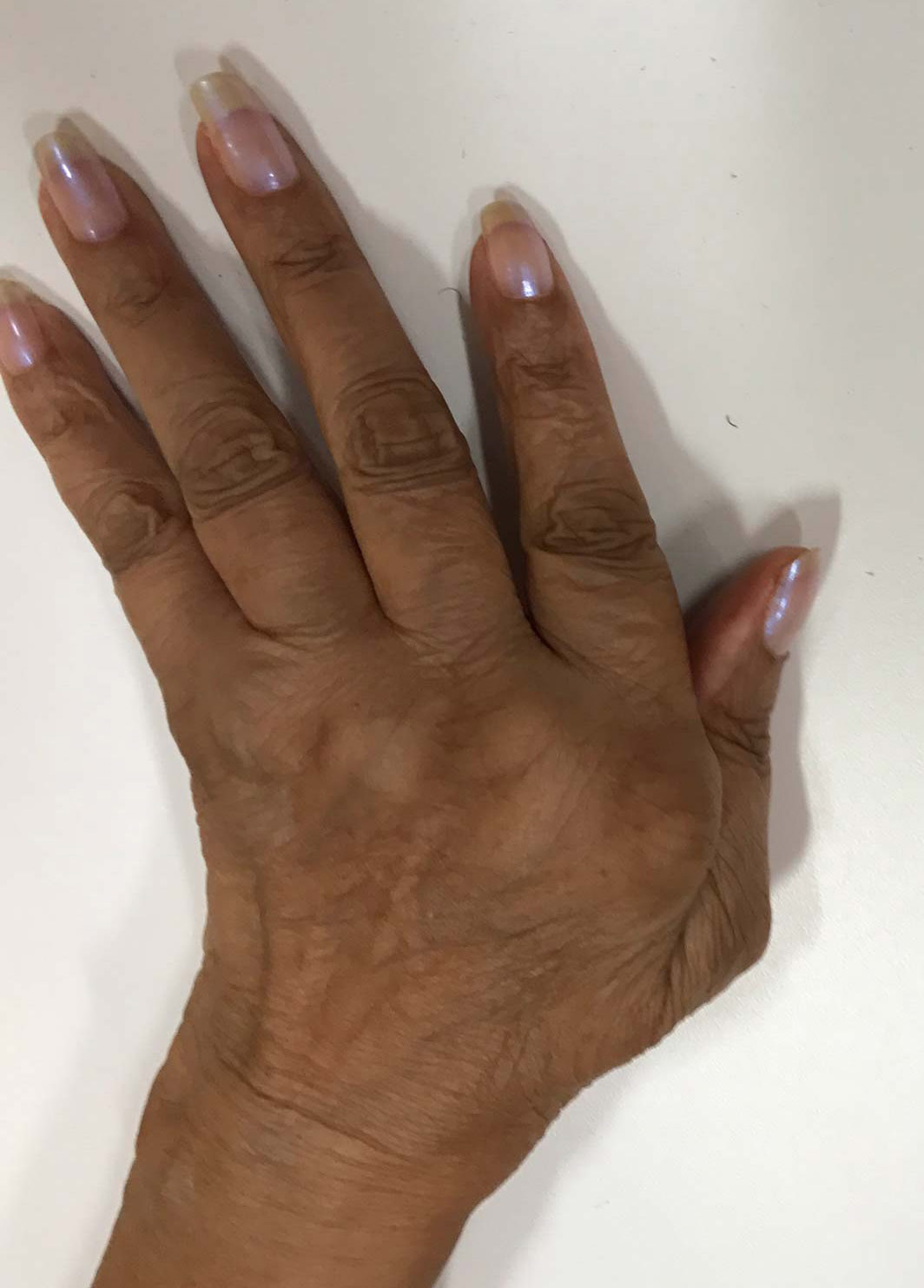 hand of a lady with rheumatoid arthritis