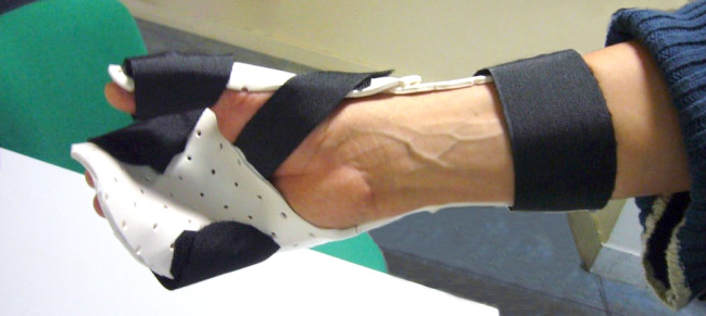 Knowing how to use lever arms is one of the splinting principles.