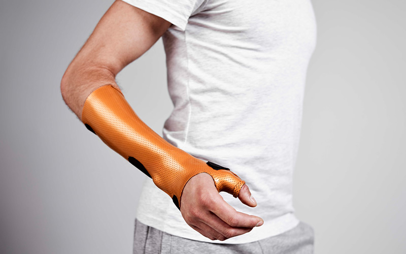 Long Opponens Orthosis in Orfit Colors NS