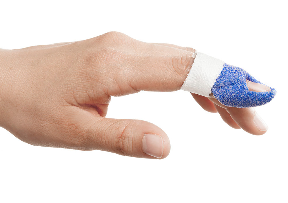 Hand with a mallet finger orthosis in Orficast blue