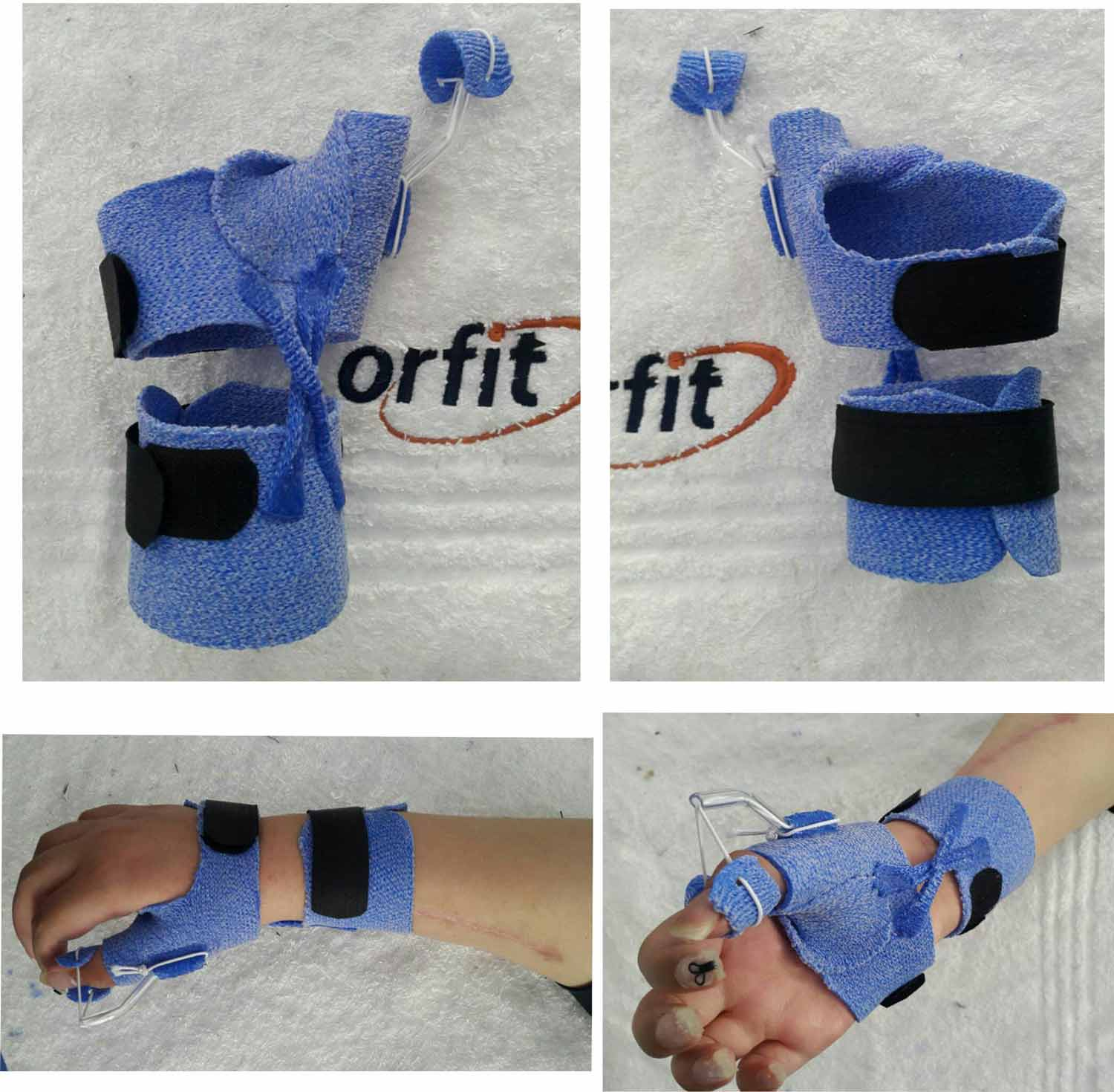 6 Orthotic Fabrication Ideas With Orficast More