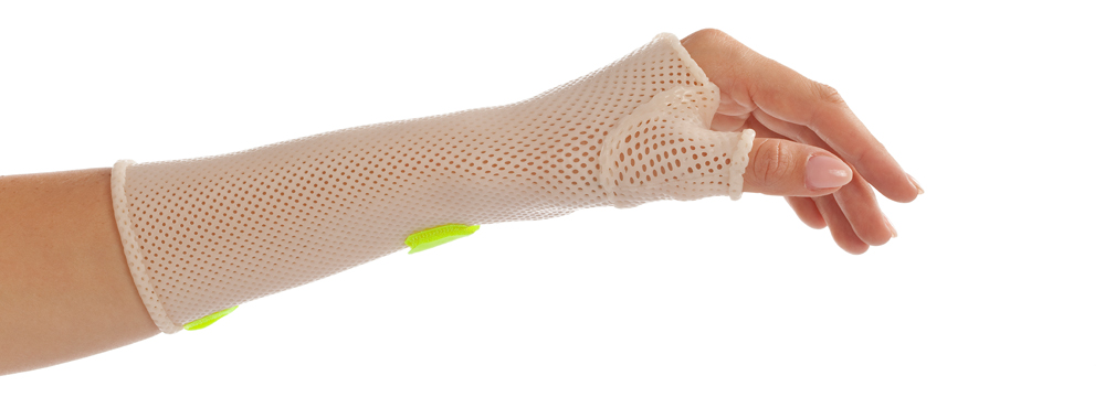 Thumb Immobilization Orthosis with Orfit Classic