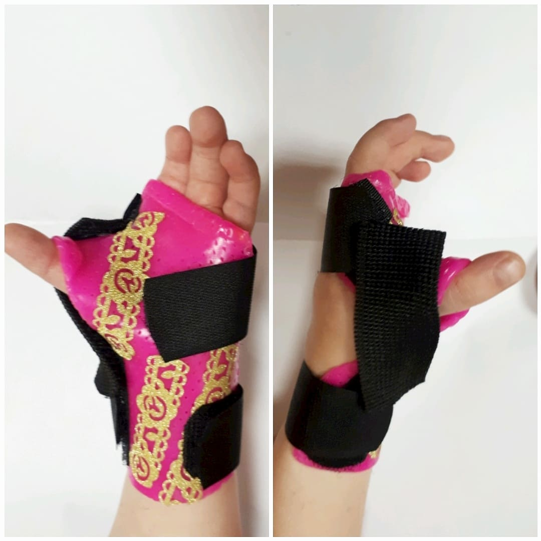 orthotic fabrication for a hypoplasia congenital malformation.
