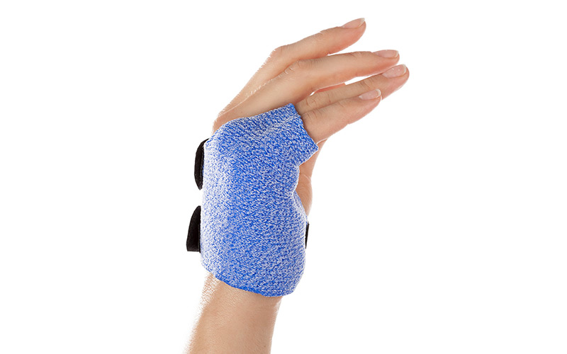 Ulnar Gutter Orthosis in Orficast More Blue