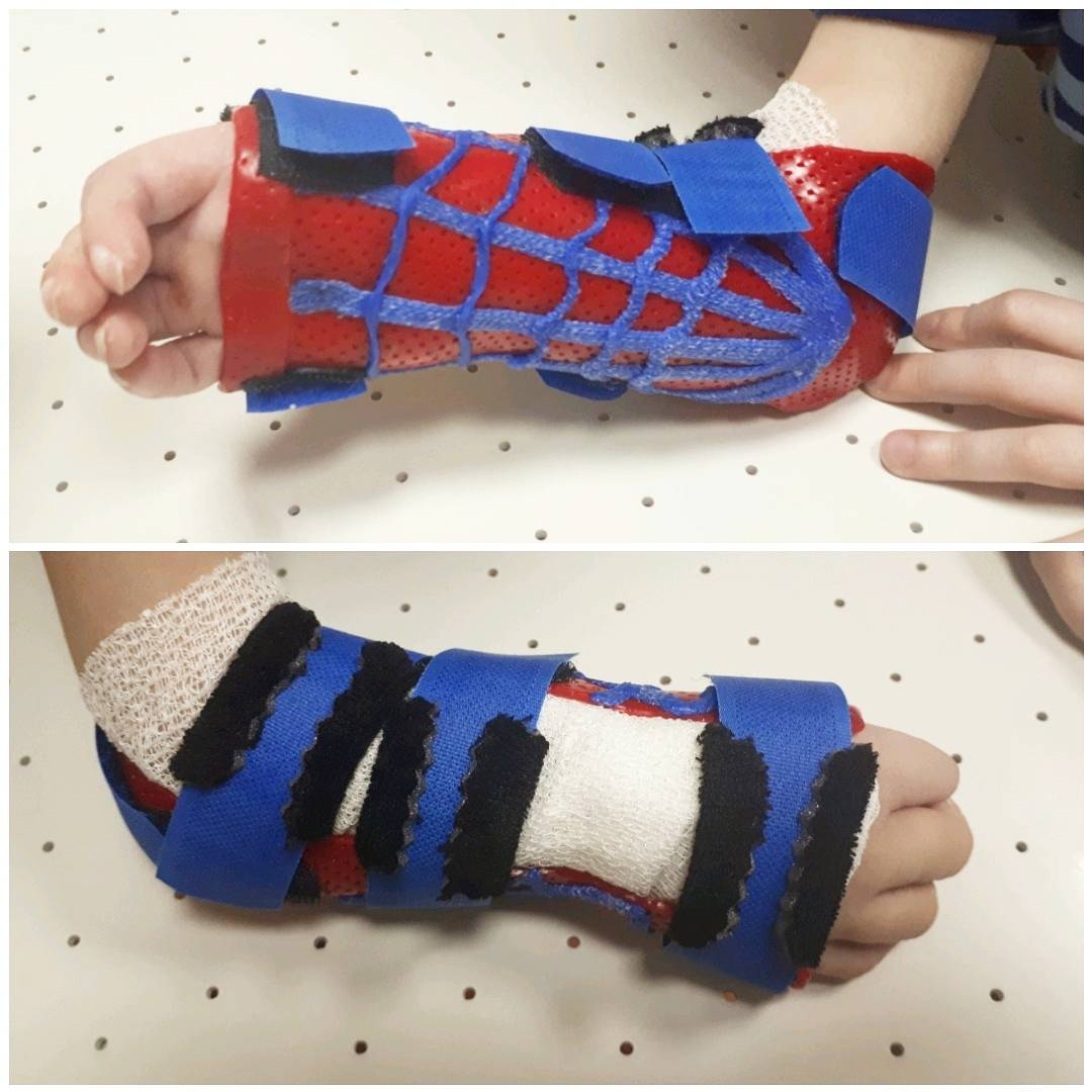 orthosis for congenital malformation following radialization