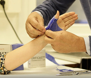Fabricating a thumb immobilization orthosis in Orficast blue