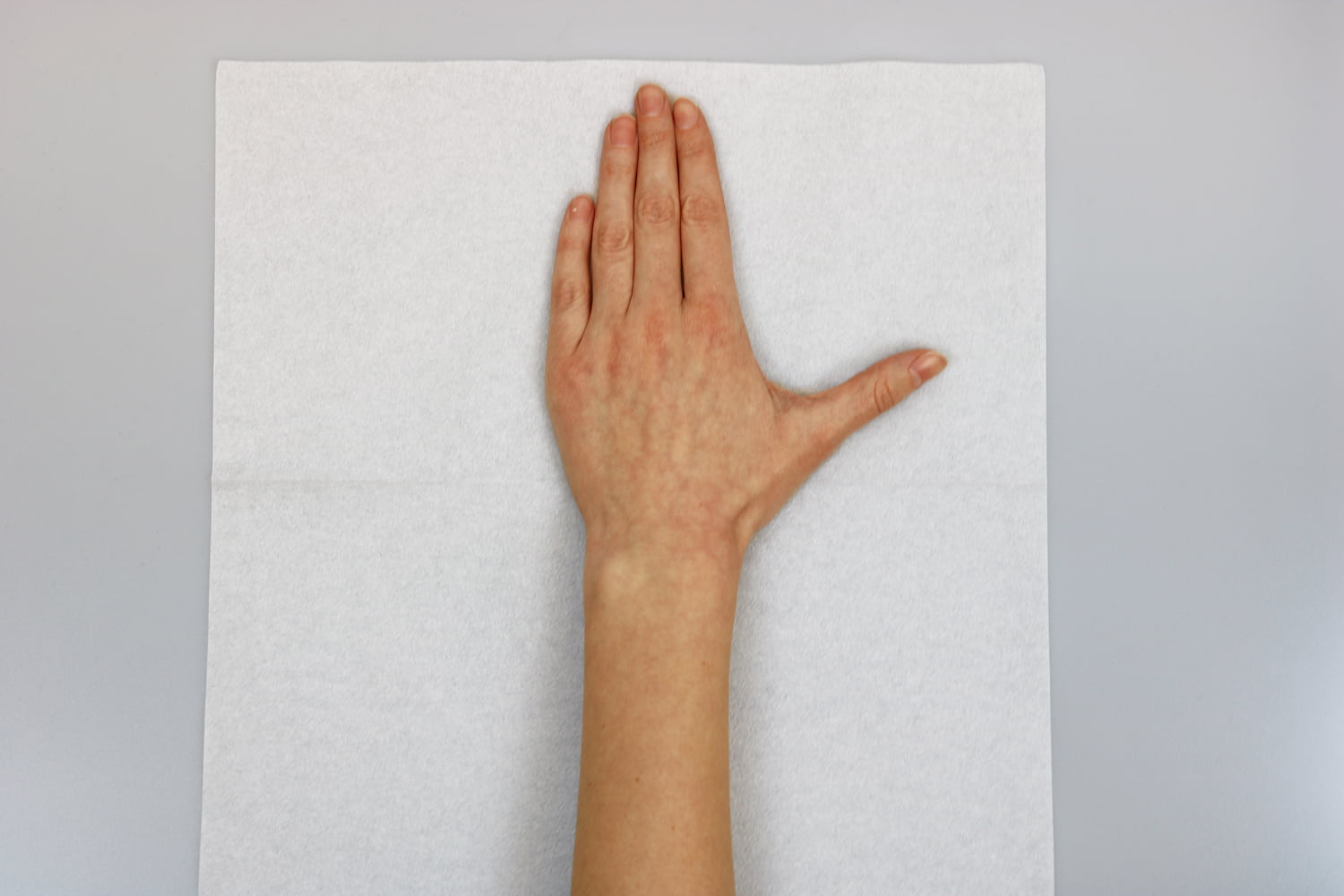 Hand positioned on a paper towel to make a pattern for an orthosis.